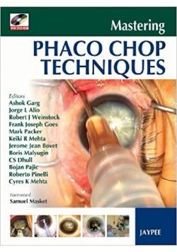 Phaco chop techniques