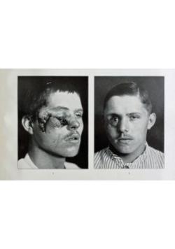 Rontgenatlas der Kriegsverletzungen 1914-1916, 1916 r.