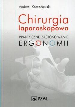 Chirurgia laparoskopowa Praktyczne zastosowanie ergonomii