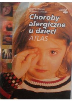 Choroby alergiczne u dzieci