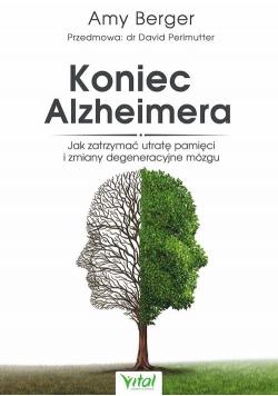 Koniec Alzheimera