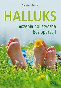 Halluks. Leczenie holistyczne bez operacji